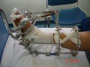 4-εγχείρηση