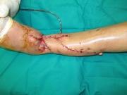 4-dermatoplasty