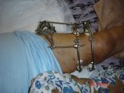 3-εγχείρηση