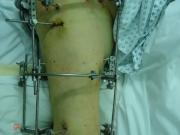 5-εγχείρηση