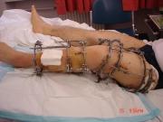 4-surgery