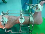 4-πρώτη-εγχείρηση